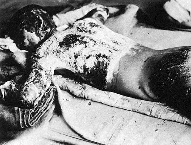 Hiroshima Bomb victim